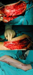 AVF: arteriovenous fistula