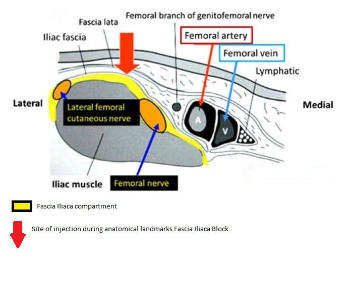Figure 2. In this anatomical drawing the fascia iliaca compartment is highlighted with the yel-low colour. The first loss of resistance is felt when the fascia lata is punctured and the sec-ond loss of resistance when the fascia iliaca is penetrated. This drawing also shows the rela-tion to the femoral vessels and the site of injec-tion (red arrow).