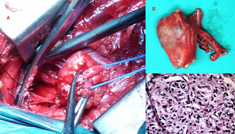 Figure 2: A: Intraoperative view of the tumor infiltrating the left brachial plexus. B: Surgical specimen C: Pathological examination of the specimen (malignant schwannoma). High power showed in better detail the malignant appearance of the nuclear pattern within the spindle cells of this malignant schwannoma that is strongly positive with the S100 immunohistochemical analysis