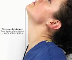 Eικόνα 4. Στερνοπωγωνική απόσταση (Sternomental distance)