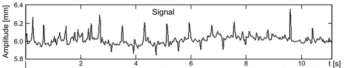 Figure 4. Example of spontaneous pupils fluctuation9.