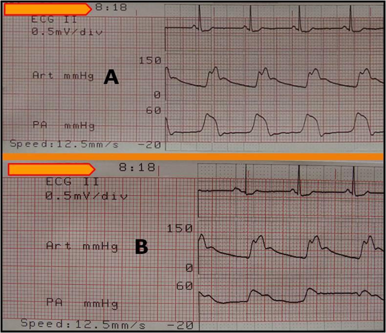 Εικόνα 1. Αιμοδυναμικές καταγραφές αμέσως μετά την τοποθέτηση του καθετήρα της πνευμονικής αρτηρίας. Από πάνω προς τα κάτω: ηλεκτροκαρδιογράφημα, συστηματική αρτηριακή πίεση, πίεση στην δεξιά κοιλία(Α) και πίεση στην πνευμονική αρτηρία (Β).