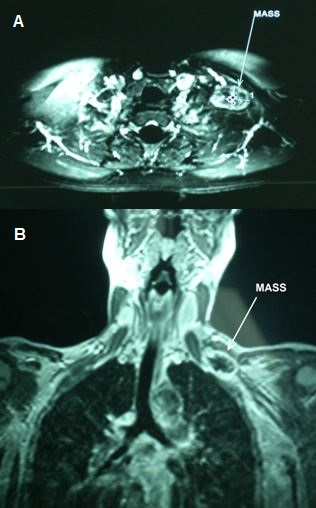 Figure 1: A: Axial Magnetic Resonance Image depicting a mass involving the left brachial plexus and measuring 3.34 cm in the long axis (white number 1) and 2.36 cm in the short axis (white number 2). B: Coronal Magnetic Resonance Image showing the same mass in relation with the adjacent anatomic structures.