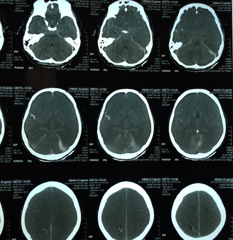 Figure 2. Patient's brain CT-scan.