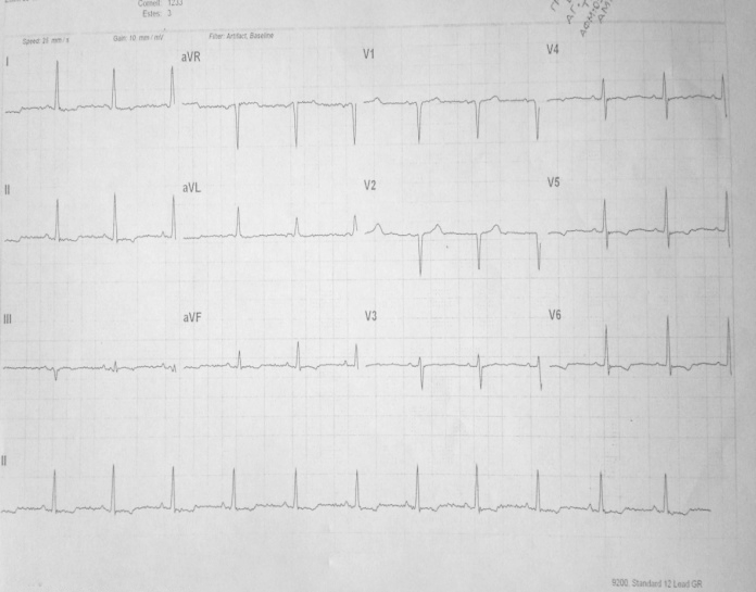 Image 1. A. Electrocardiogram showing sinus rhythm and