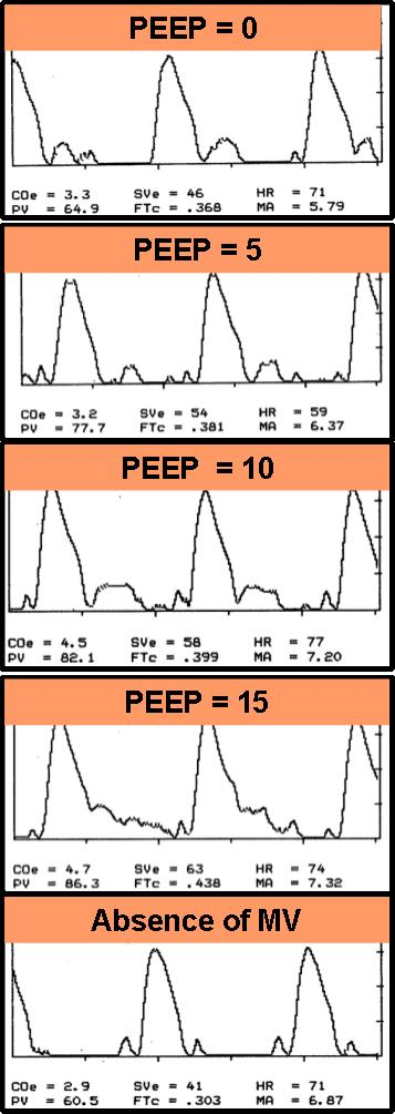 Figure 2. Period B: ODM Waveforms (traces)