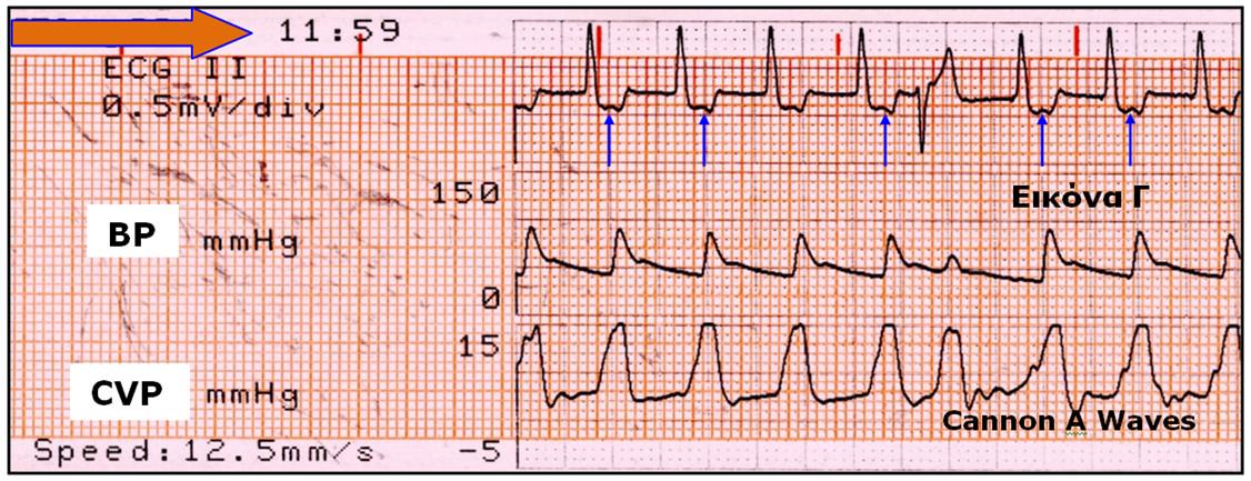 Εικόνα Γ. Γιγαντιαία κύματα Α έπονται των κυμάτων P (σημειώνονται με βέλη) τα οποία ακολουθούν τα κύματα QRS.